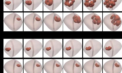 Tumori alla prostata: una simulazione al computer per comprenderne la crescita