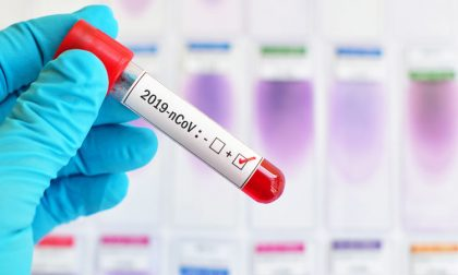 Coronavirus: 354 nuovi positivi in Lombardia. A Pavia e provincia sono 5.293 (+32)
