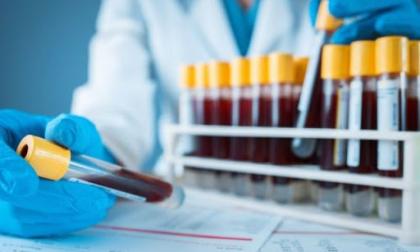 Covid-19: Maugeri effettua test sierologici anche a Pavia