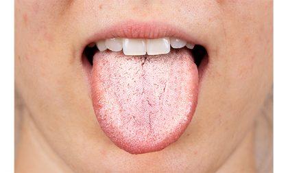 La candida orale colpisce bocca e lingua
